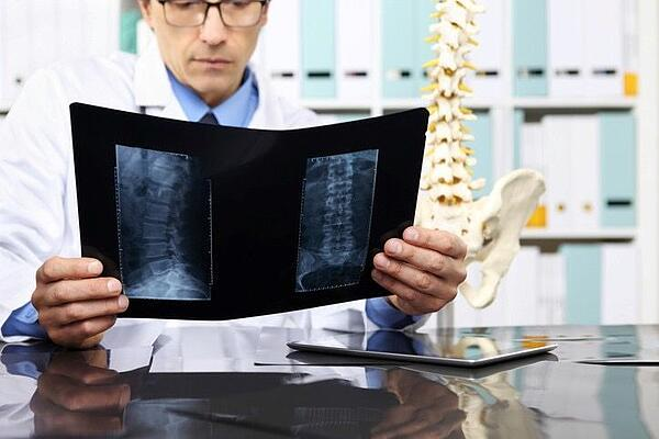 Chiropractic Doctor Looking at x-rays of patient