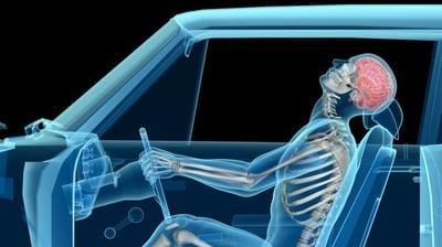 Car accident whiplash diagram