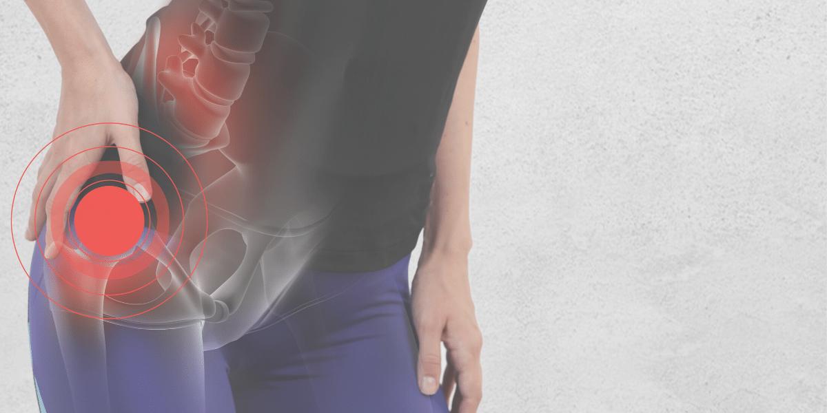 Hip Pain Chiropractor Newnan, GA