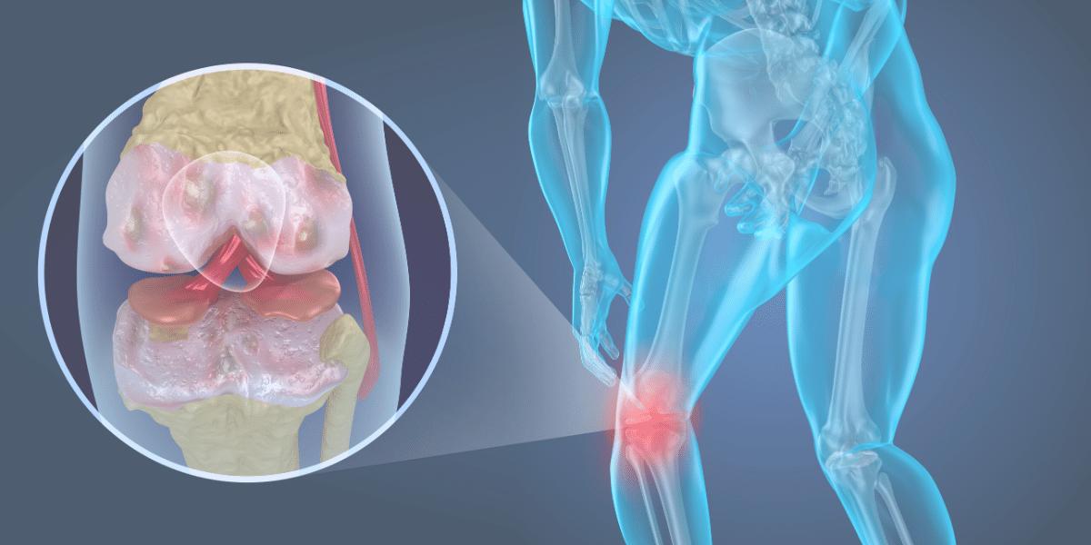 Knee Pain Chiropractic Treatment Newnan, GA
