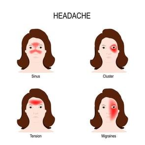 Cluster, Tension, Sinus, Migraine Headaches