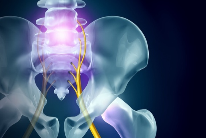 Columbus Georgia Sciatic Nerve Pain