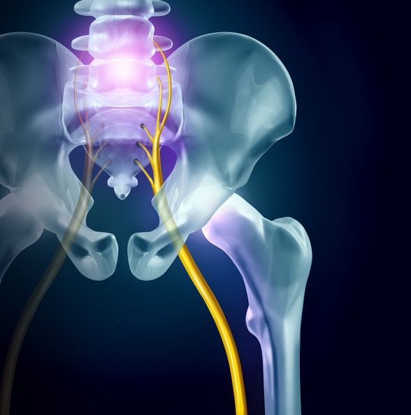 Atlanta Sciatic Nerve Pain