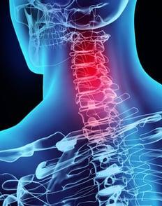 Neck Pain Treatment in Columbus, Georgia