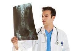 Doctor examining x-ray of auto accident injury victim in Columbus, Georgia