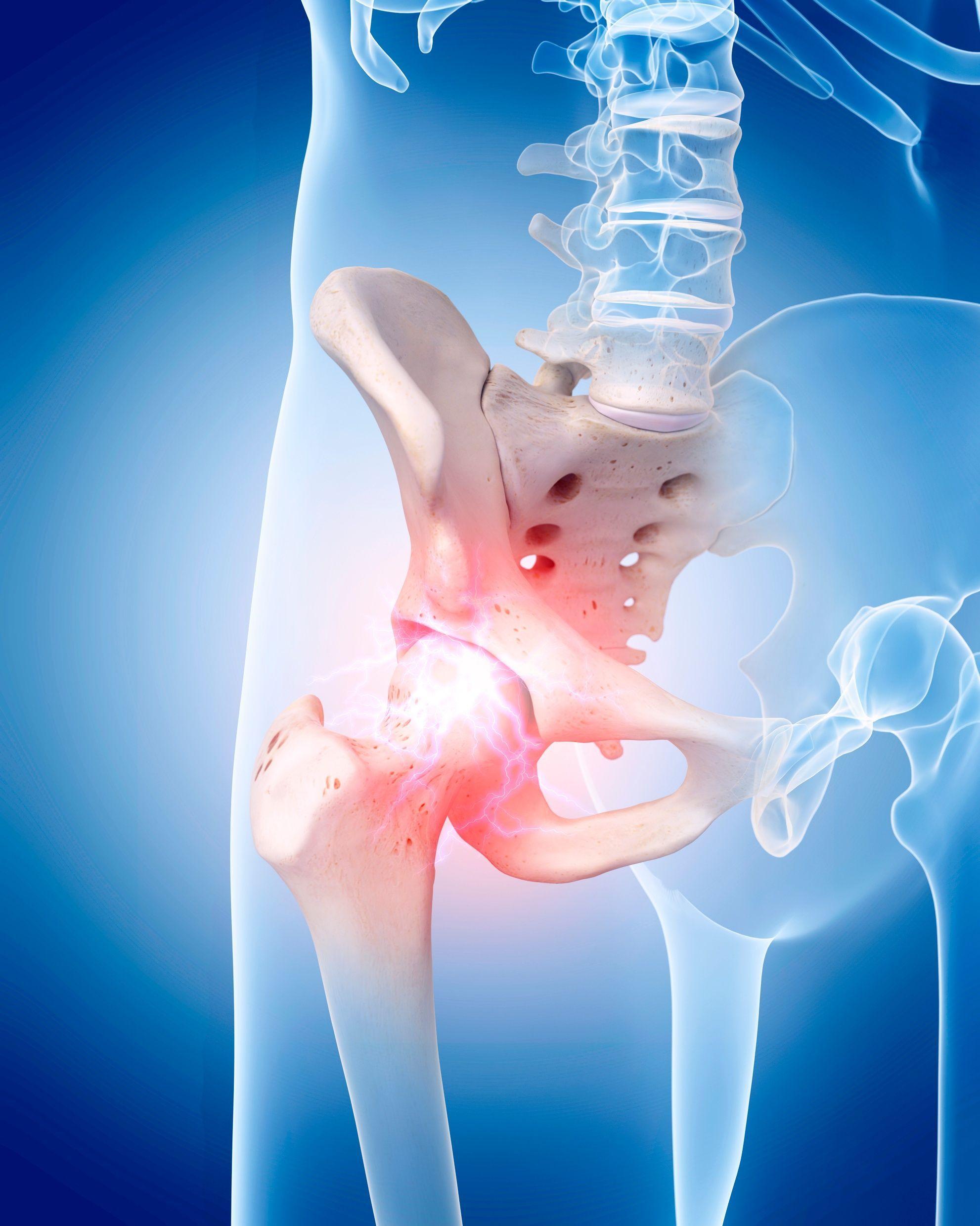 Savannah Hip Pain Treatment