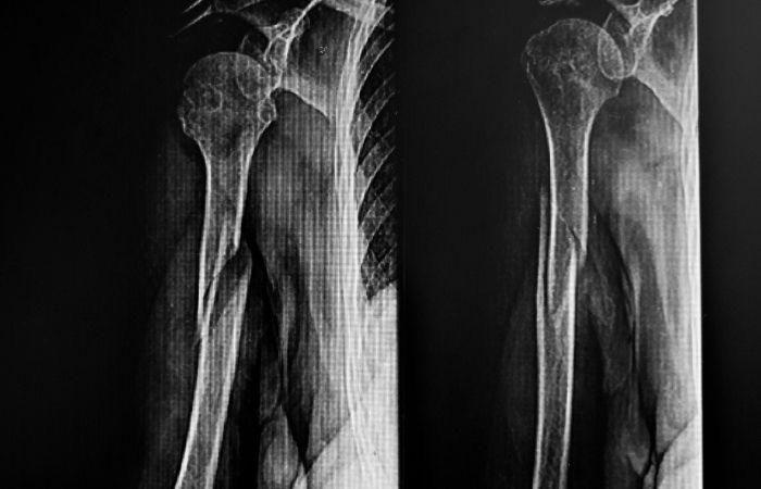 motorcycle crash victim broken bones